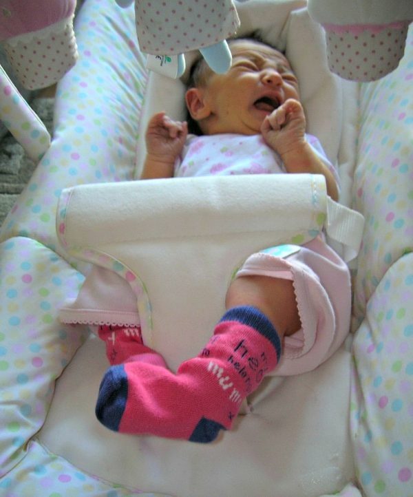 talipes, what is clubfoot, living with clubfoot