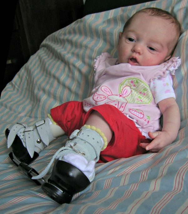 what is clubfoot, living with clubfoot, boots and bar